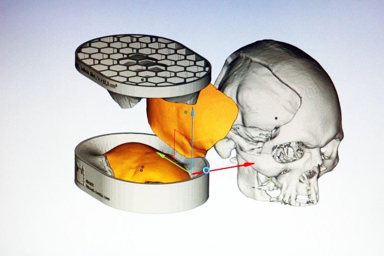 Reprodução de imagem de computador de molde e colocação de prótese de cimento ósseo - Foto: Fernando Frazão/Agência Brasil