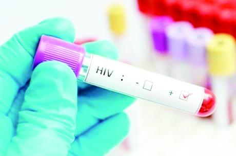 Descobertas maneiras de tirar HIV do esconderijo - Foto: Thinkstock