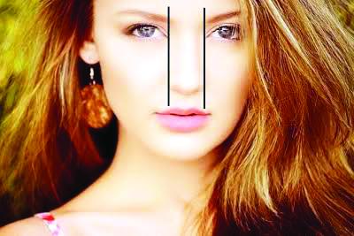 Alectomia, cirurgia para redução da base do nariz (fechamento das narinas). Faça uma avaliação (34) 3322-9935- Dr Fábio Azevedo CRO MG 24973