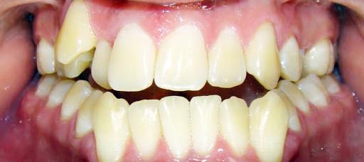 A má oclusão dentária atrapalha a reprodução de fonemas que dependem da posição dos dentes e da língua - Foto: Divulgação