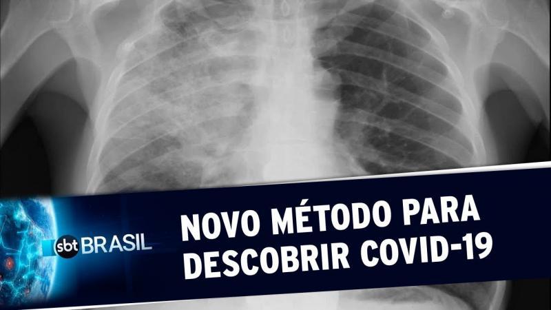 Covid-19: Sistema pode identificar insuficiência respiratória pela voz